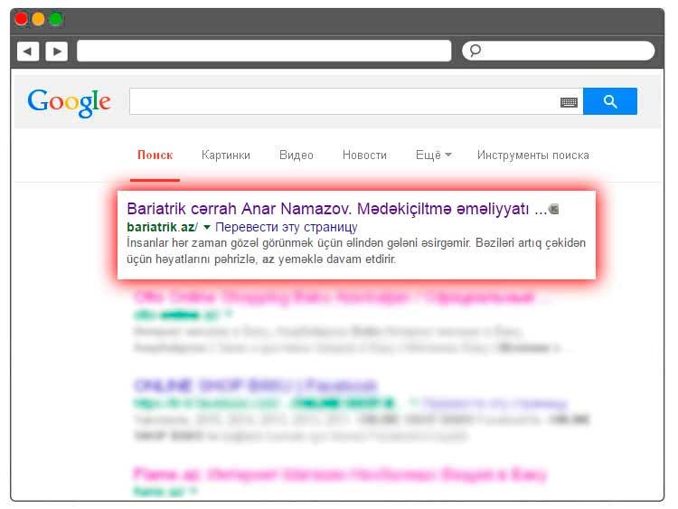 Bariatrik Cərrahiyyə Saytının Google-da Irəlilənməsi